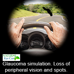 glaucoma simulation risk